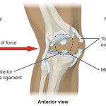 Nationwide implementation of anterior cruciate ligament injury prevention – Why is so hard to get it done?