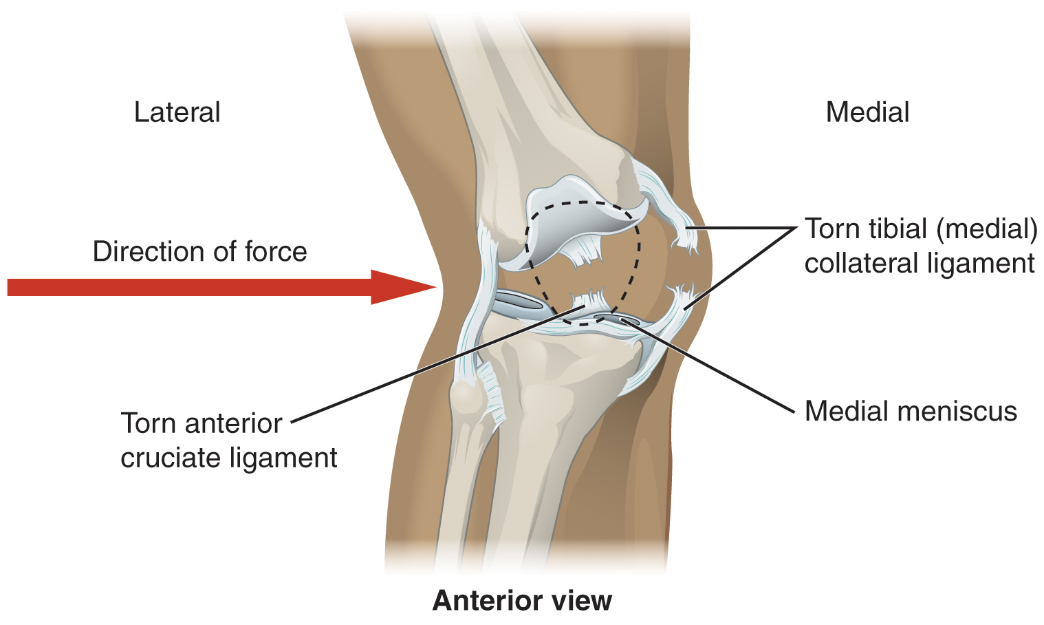 Nationwide implementation of anterior cruciate ligament